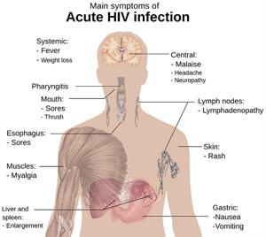 Primeros sintomas de infeccion vih