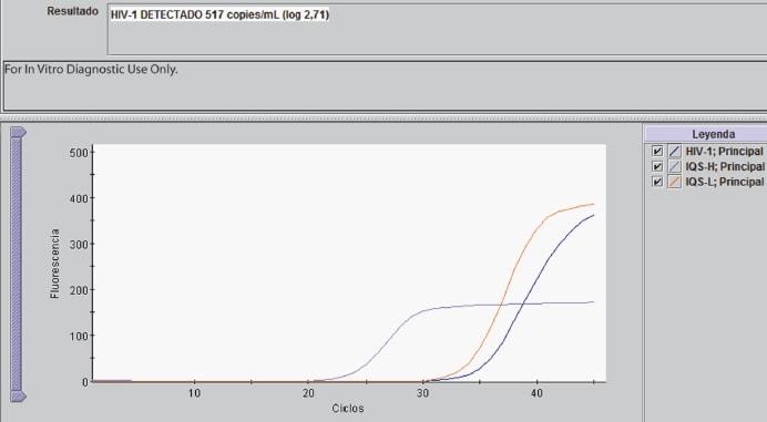 PCR cuantitatitva con carga viral detectada