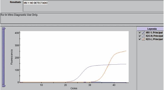 PCR cuantitativa con carga viral indetectable
